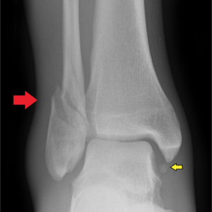 Foot and Ankle Fractures | Oakland Bone and Joint Specialists